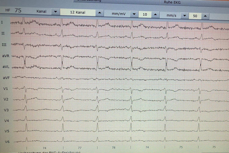 12- Kanal Ruhe -EKG | Kardiologie Laupheim Dr. Alan