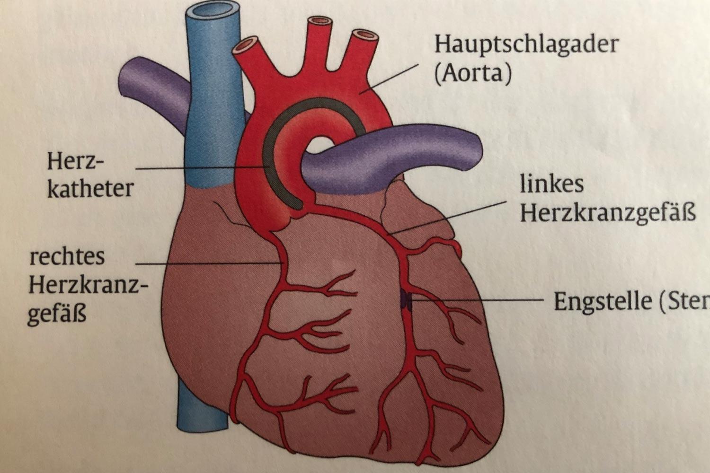 Schellong-Test | Kardiologie Laupheim Dr. Alan