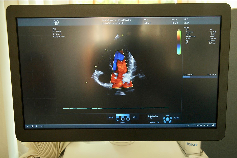 Transösophageale Echokardiographie (TEE) und elektrische Kardioversionen